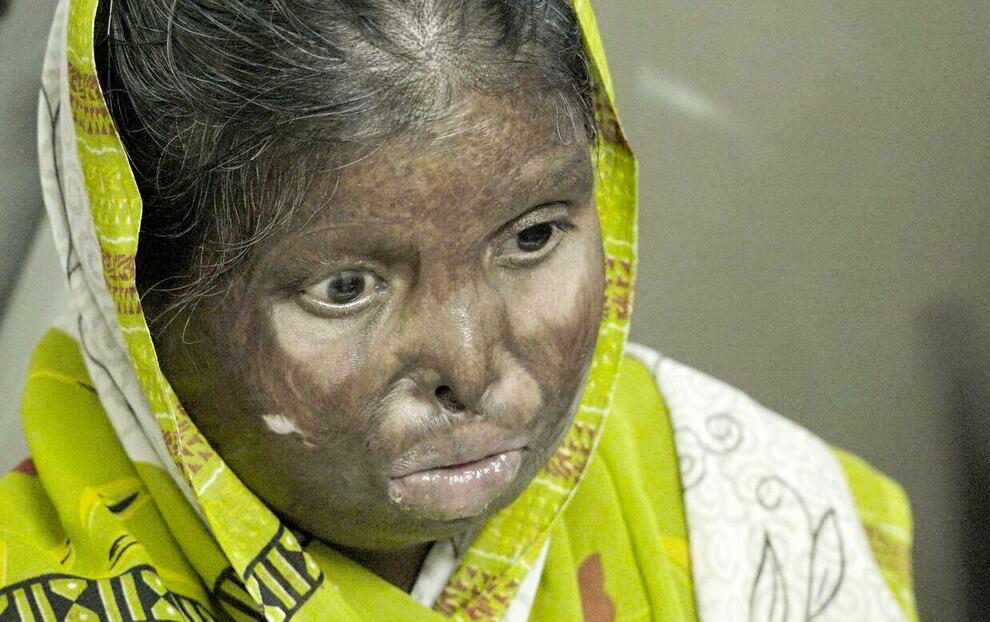 India Scars